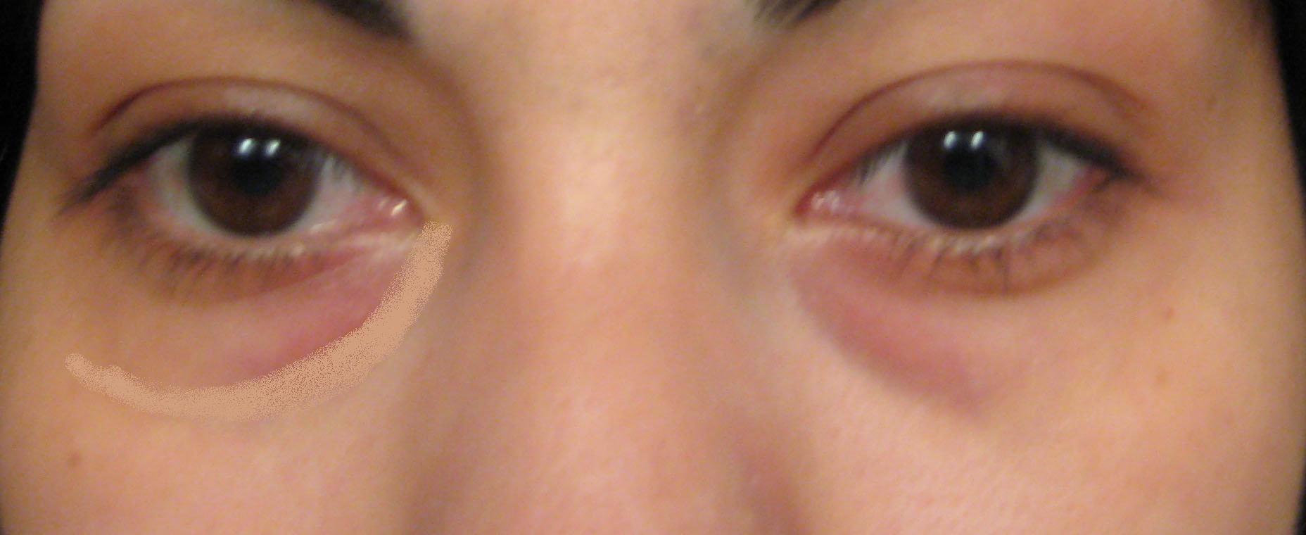 Under-eye Concealer   Uptown Girl of Facade Beauty
