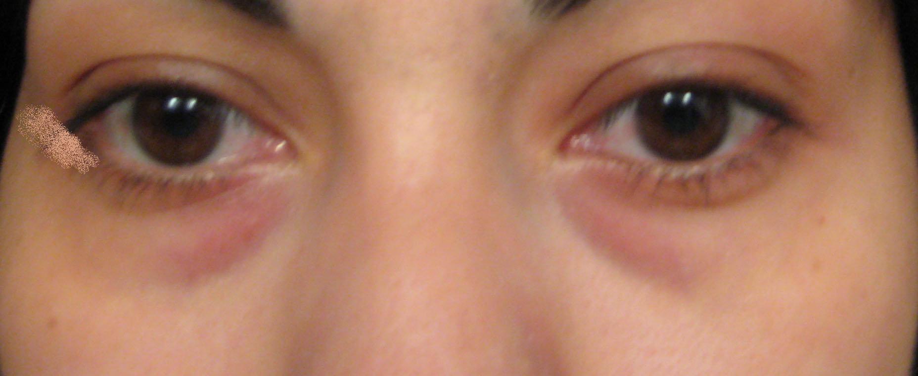 Часто чрезмерное скопление жидкости свидетельствует о патологии в области почек.