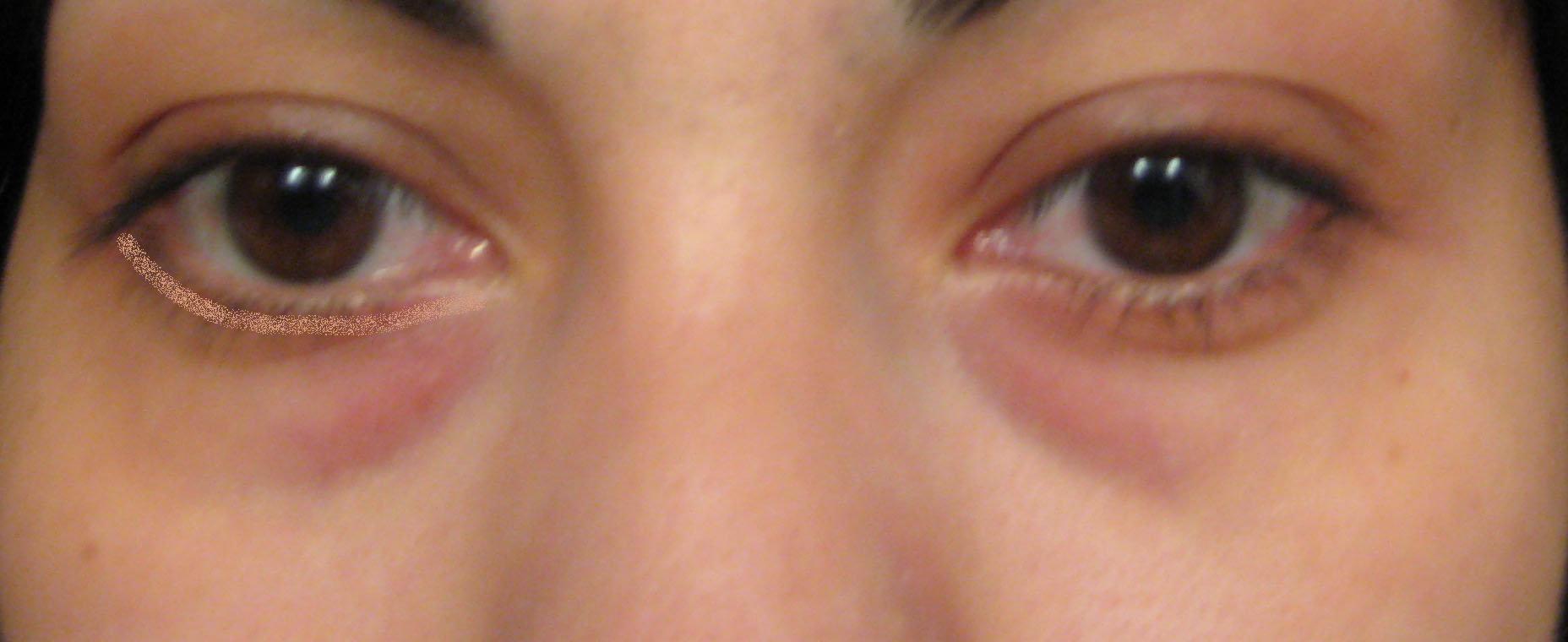 Under Eye Concealer Uptown Girl Of Facade Beauty Frnd Cosmetics Set D